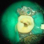 Rimozione amalgama protetta